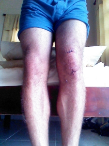 A few days after the incident and my knee is already looking amazingly better.